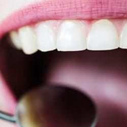 Tek Diş Kaplama Fiyatları