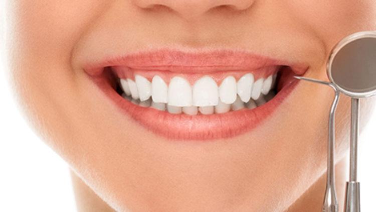 Lamine Diş Tedavisi