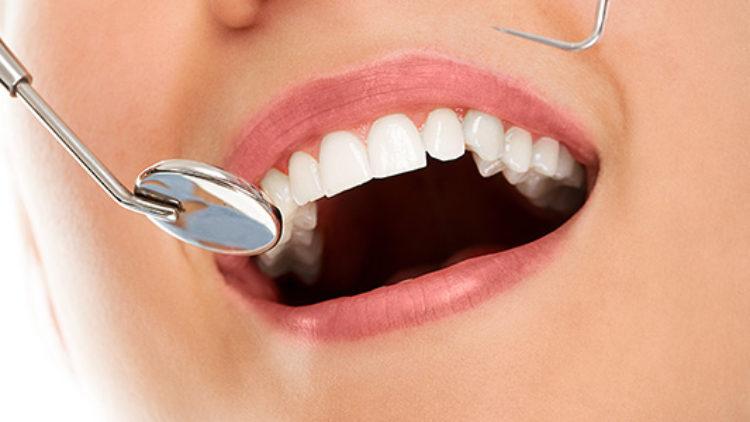 Diş Yaptırma Süreçleri