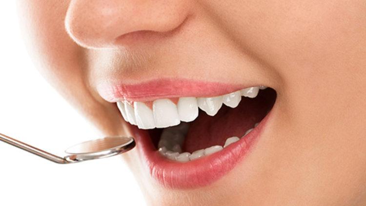 Lamine Kaplama Diş Tedavisi
