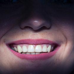 Porselen Diş Kaplama Fiyatları
