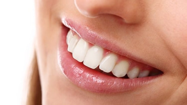 Gülüş Estetiği Nedir? Hangi Durumlarda Yapılır?