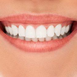 Diş Estetiği Tedavisini Nasıl Yaptırabilirsiniz?